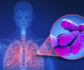 State and Local Officials Investigating Cases of Legionnaires' Disease
